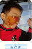 右鼻腔横纹肌肉瘤术后复发